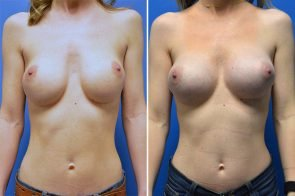 Breast Implant Revision 1