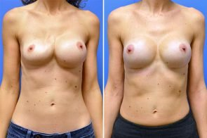 Breast Implant Revision 2