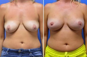 Breast Lift with Augmentation Case # 204