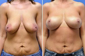Breast Lift with Augmentation Case # 205