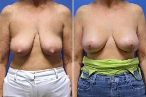 Breast Lift with Augmentation Case # 206