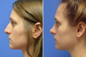 Rhinoplasty Case # 155