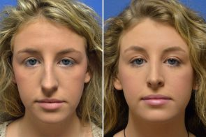 Rhinoplasty Case # 156
