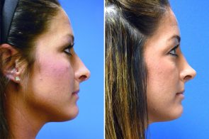 Rhinoplasty Case # 157