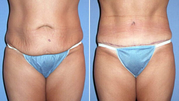 tummy tuck little rock before and after photo